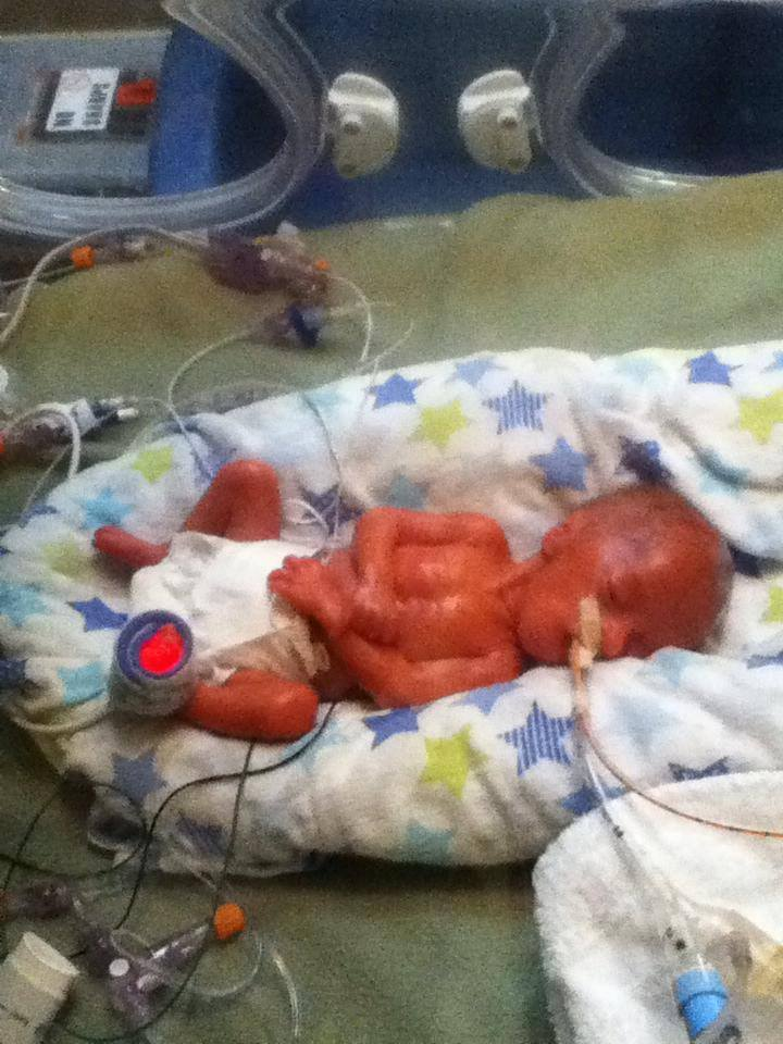 29 Week Preemie Steps To Survival Summer Setting
