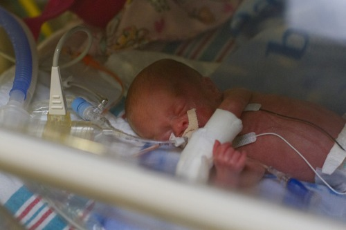 Preemie in isolette