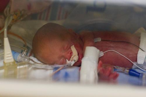 Preemie sleeping