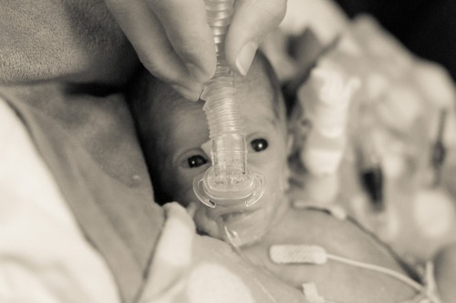 Preemie with SiPAP