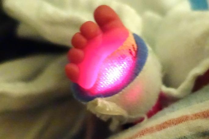 Preemie's foot
