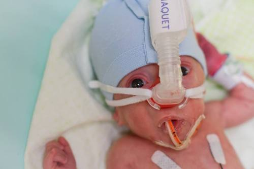 Samuel with CPAP