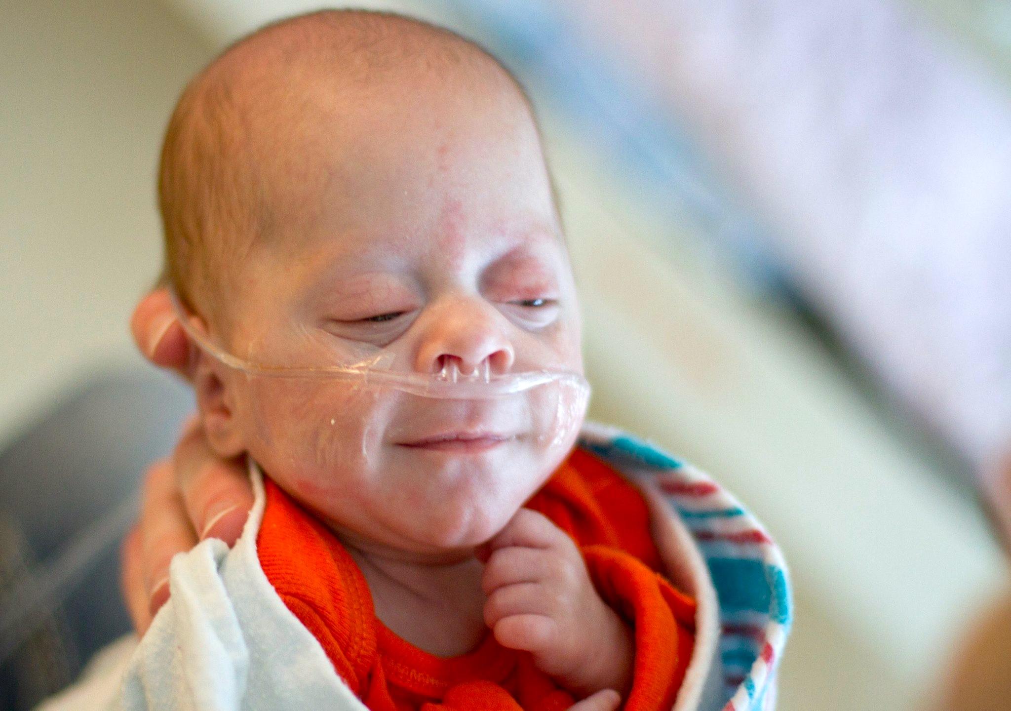Smiling preemie
