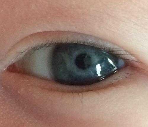 Eye of Baby